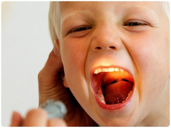 Болит горло и сухой кашель чем лечить