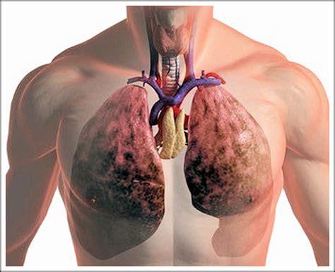 Клюква при пневмонии