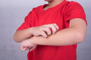 кожный зуд у ребенка