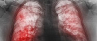 Пневмония
