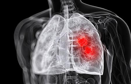 Абсцесс легкого лечение антибиотики