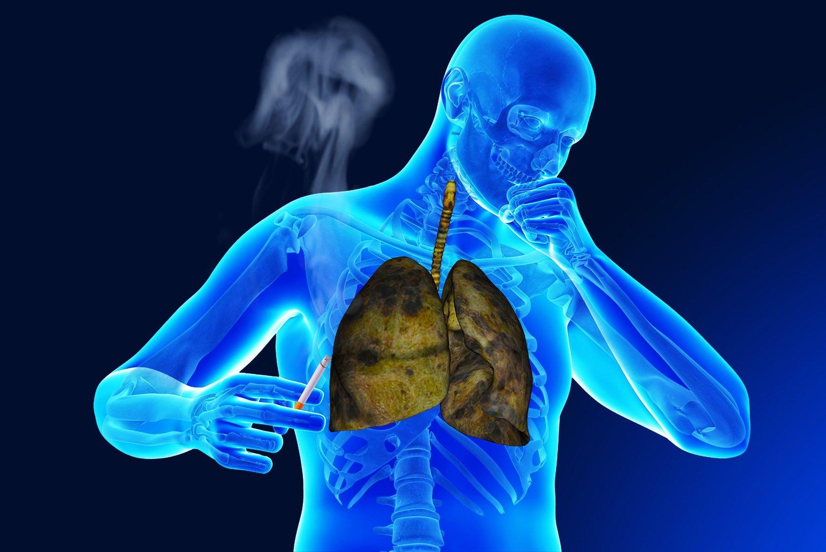 Таблетки от бронхита курильщика