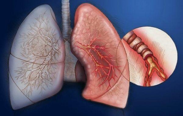 Диффузный атрофический эндобронхит — Лор и Простуда