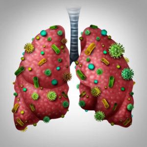 инфицированные вирусами и бактериями легкие человека