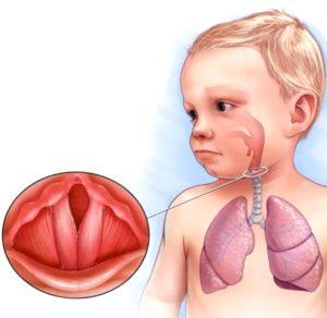 Как вылечить ребенку хриплый кашель thumbnail