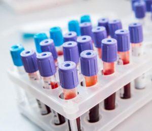 общий анализ крови