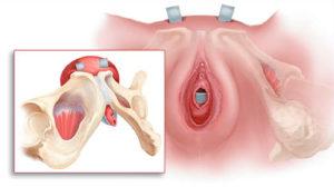 Слинговая операция TVT при недержании мочи у женщин