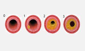 степени тяжести эндобронхита