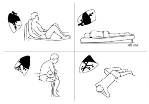 упражнения для отхождения мокроты