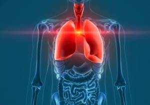 воспаление в бронхах и лёгких