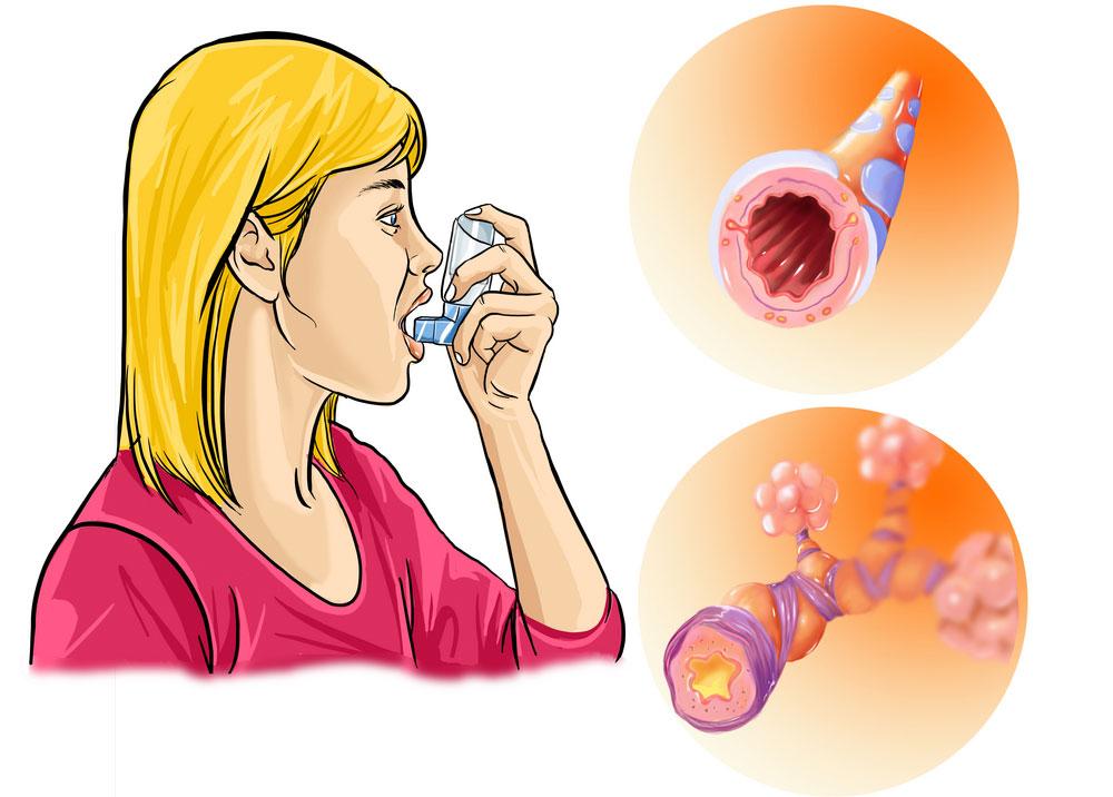 Какая инволидность дается при астме