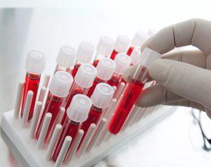 анализ кислотно-щелочного баланса крови