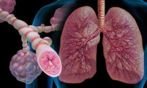 Эндогенная астма