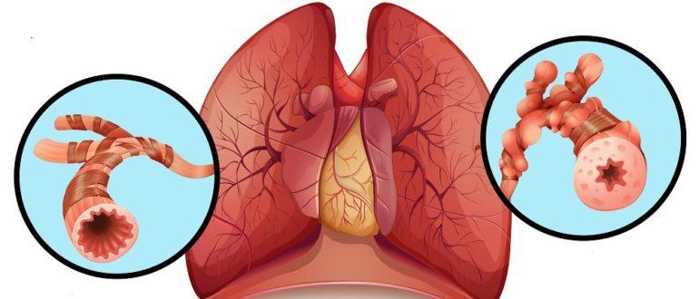 как выглядят бронхи у здорового человека и у астматика