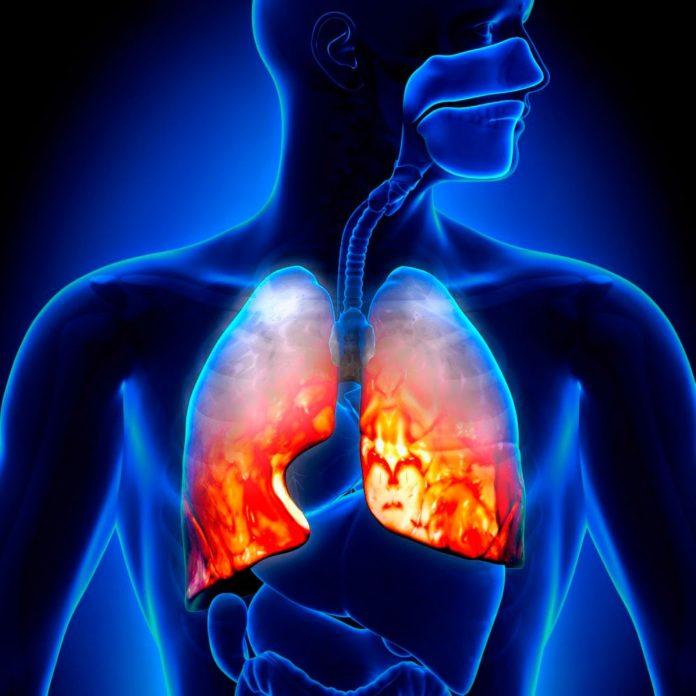 Как вылечить воспаление легких в домашних условиях