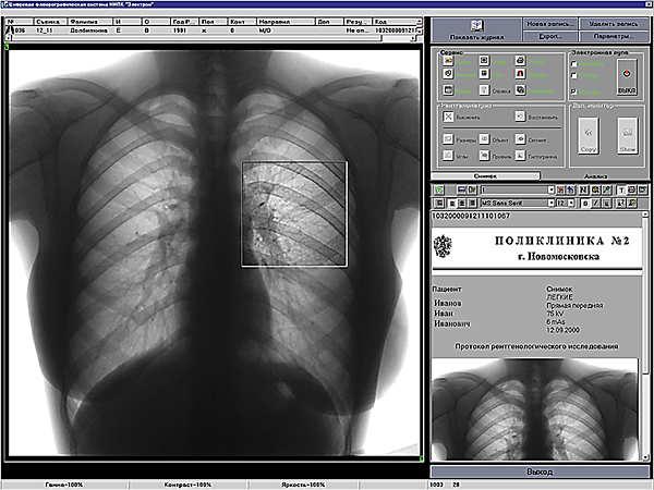 Как выглядит пневмония на снимке флюорографии