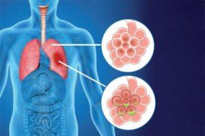 гнойная пневмония