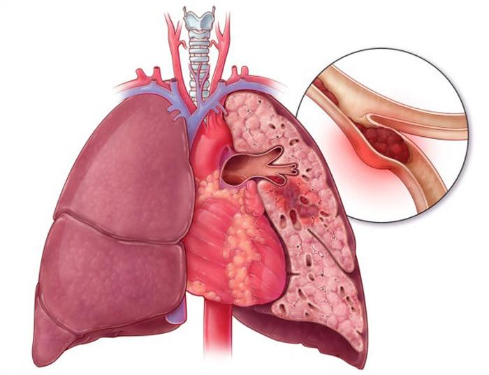 Воспаление легких после инфаркта - Лечение простудных заболеваний