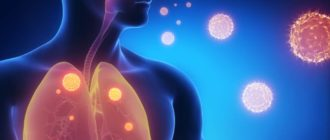 инфекционная пневмония