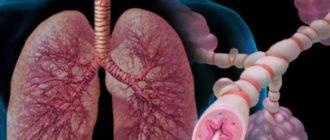 интермиттирующая астма