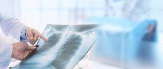 интерстициальная пневмония на рентгене