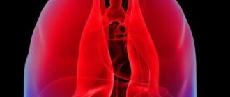 хроническая пневмония