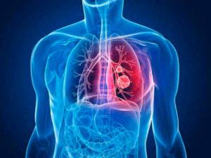клебсиелла пневмония