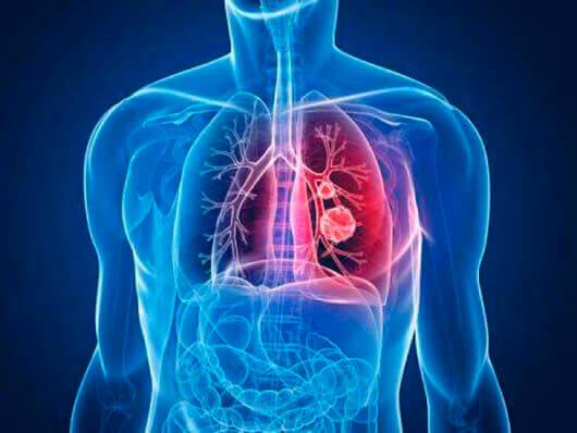 Klebsiella pneumoniae в кале у взрослого