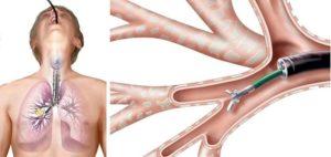 лечебная бронхоскопия
