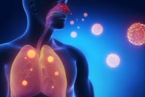 легионеллезная пневмония