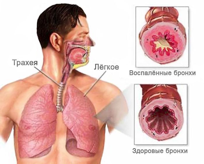 Лечение хронического бронхита у взрослых препараты