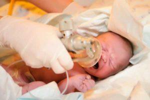 оксигенотерапия новорожденному