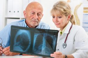 пневмония у пожилого человека