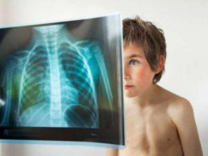 пневмония у ребенка