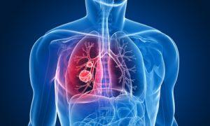 правосторонняя пневмония