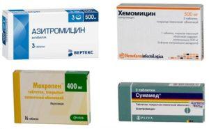 препараты из группы макролидов