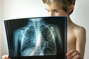 рентген легких ребенка