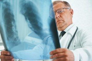 Куда обратиться если бронхиальная астма thumbnail