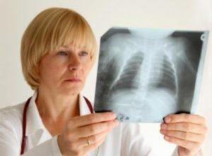 рентгенограмма органов грудной клетки