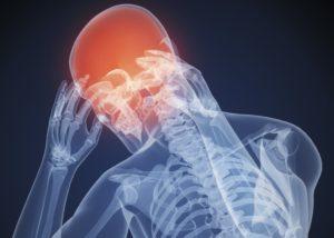 Сильная головная боль