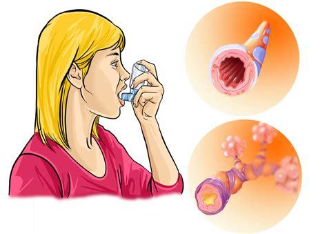 Приступ астмы: механизм развития, симптомы проявления, первая помощь и лечение