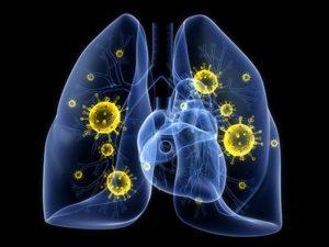 инфекция в легких