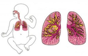 Антибиотики при бронхите при беременности 1 триместр thumbnail