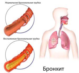 Осложнения пневмонии и бронхита thumbnail