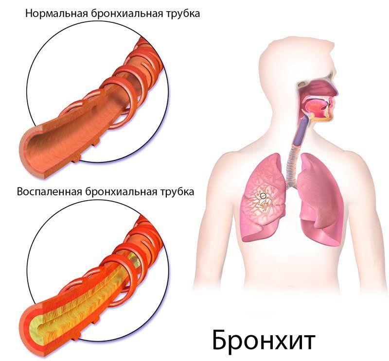 Как лечить бронхит или пневмонию в домашних условиях thumbnail