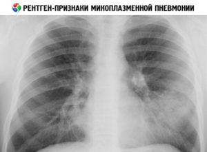 микоплазменная пневмония на рентгене